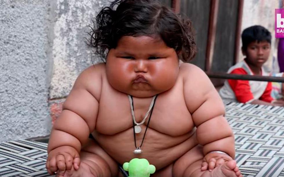 Agée de 8 mois, cette petite fille indienne pèse 17 kilos