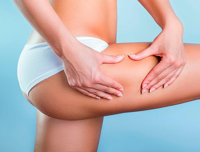 Faites la peau à la cellulite !